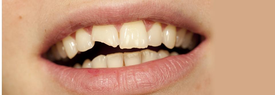 Hva bør du tenke på hvis du har fått store skader på tennene?