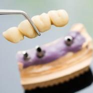 Verv en tanntekniker!
